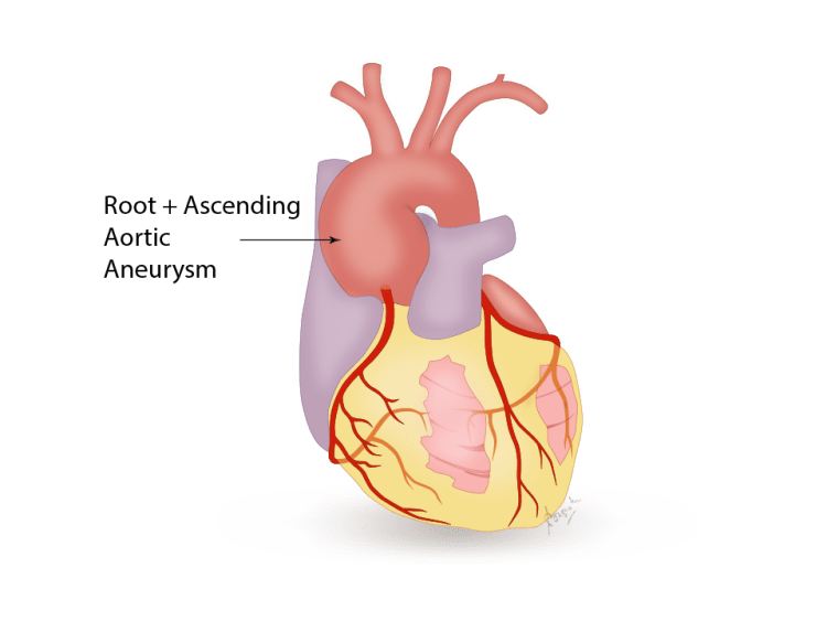 Root + ascending aortic aneurysm
