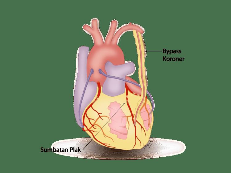 Gambar bypass Jantung
