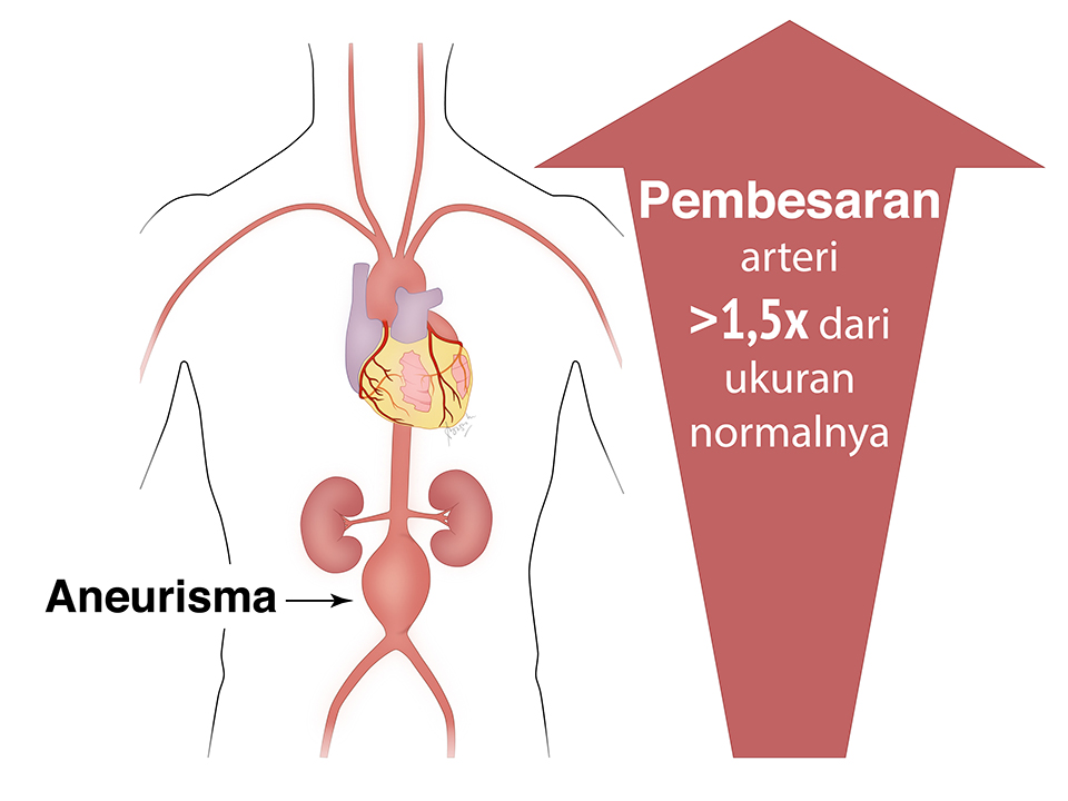 Ilustrasi aneurisma aorta. Pembesaran aorta lebih besar dari 1,5 kali dari ukuran normalnya.