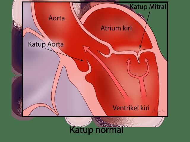 Gambar katup jantung yang normal