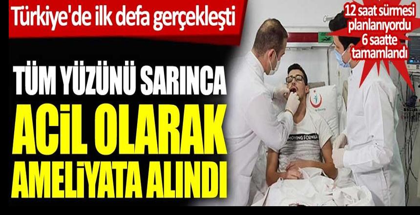 Türkiye'de ilk defa gerçekleşti. Tüm yüzünü sarınca acil olarak ameliyata aldılar