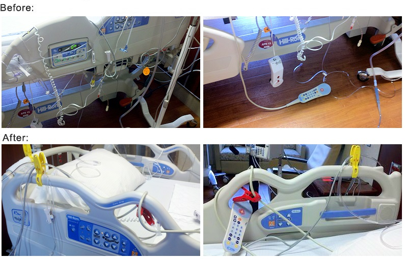 Before and After examples of hospital bed, lines and tubing that are secured using Beesafe Clips