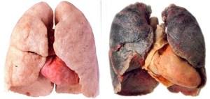 Smoking disease