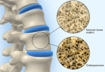osteoporosis bone turnover bone mass