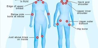 fibromyalgia socializing