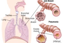 pneumonia patient how is pneumonia diagnosed diagnosis of pneumonia