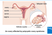 polycystic ovary syndrome pcos