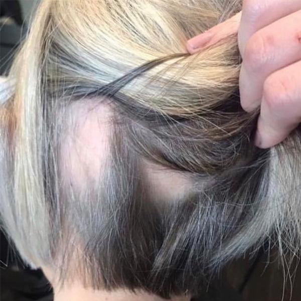Awaken-Surface-Hair-Loss-2