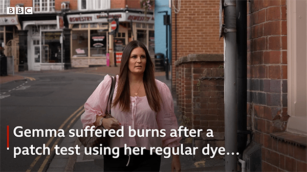 UK woman had an allergic reaction to haircolor after having COVID-19
