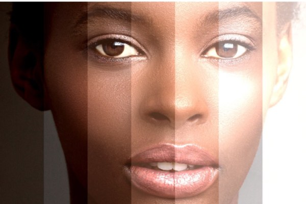 SKIN BLEACHING- pros and cons
