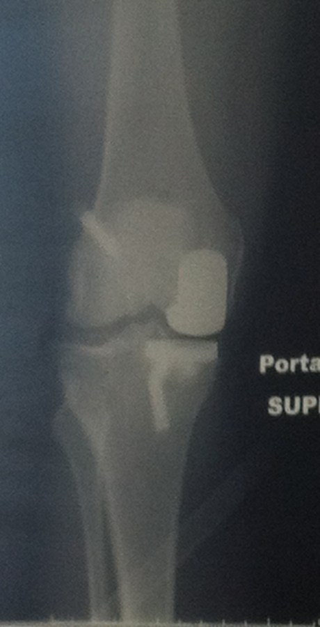 AFTER: Knee with Partial Arthroplasty.