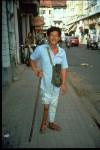 polio paralysis man