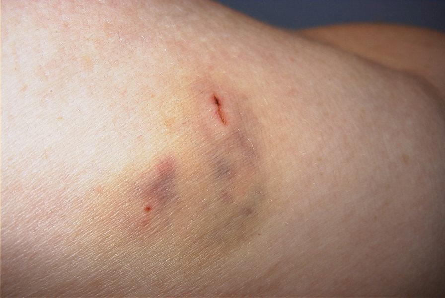 A Dog bit Me, What should I Do?