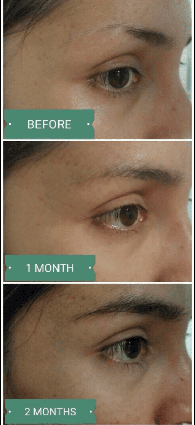 Whats The Best Eyebrow Growth Serum Top 5 Picks And Why
