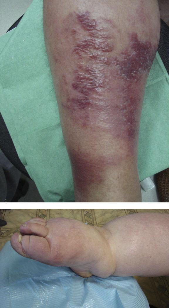 Причины и лечение рожистого воспаления коленного сустава
