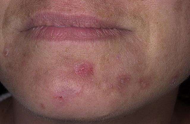 Pattanások és prosztatagyulladások