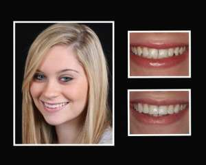 Alex before and after smile makeover in Long Island NY