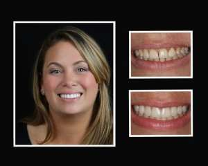 Erin before and after restorative dentist