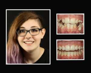 Faith before and after restorative dentist