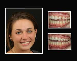 Haley before and after restorative dentist