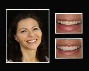 Ludmilla before and after cosmetic dentist Sal Lotardo
