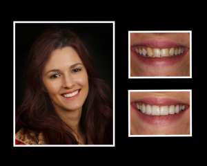 Catherine before and after porcelain veneers in Roslyn NY