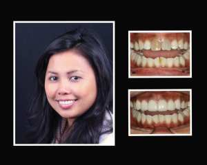 Irine before and after porcelain veneers in Roslyn NY