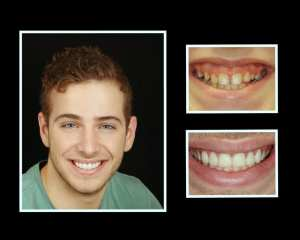 Luke before and after porcelain veneers in Roslyn NY