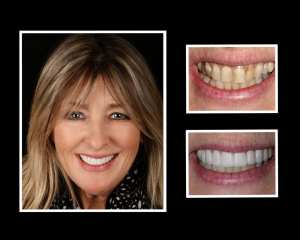 Dawn before and after porcelain veneers in New York City