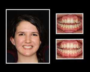 Emily before and after restorative dentistry