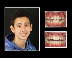 Jackson before and after orthodontics in Long Island