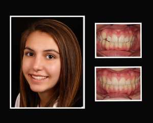Melina before and after orthodontics in Long Island