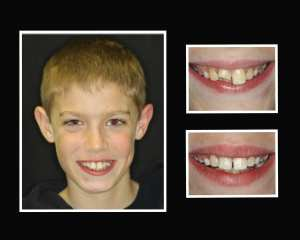 David before and after cosmetic dentistry