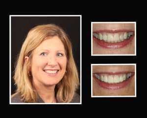 Ellen before and after cosmetic dentistry