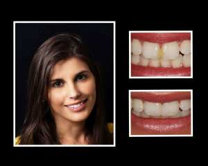 Noelle before and after cosmetic dentistry