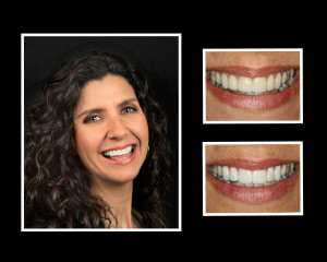 before and after cosmetic dentistry at Bella Smiles