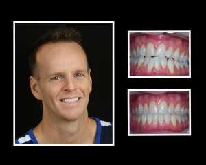 Ryan before and after orthodontics in Roslyn NY