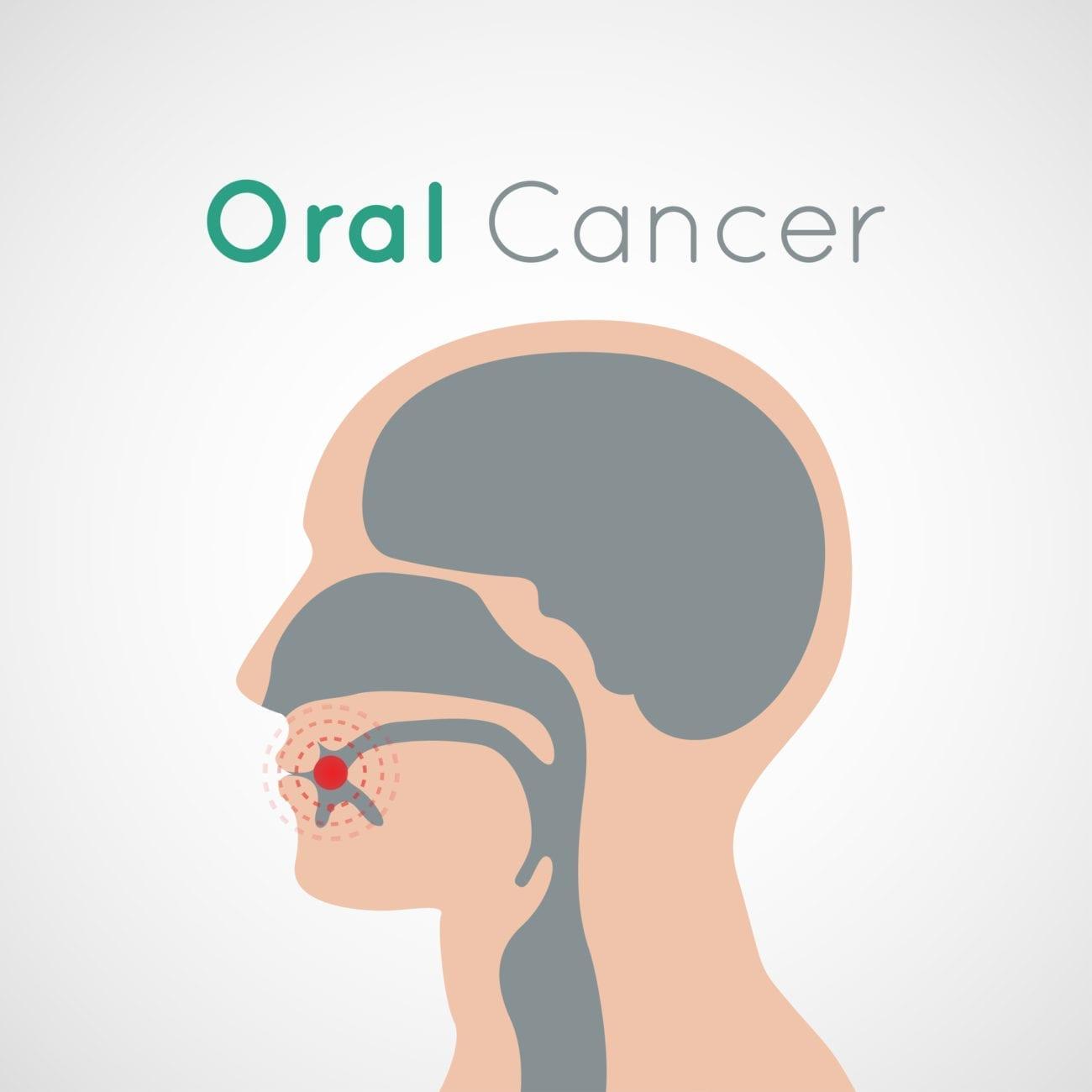 Oral Cancer Riverhead NY