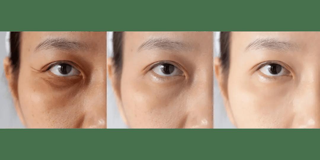 Tear Trough and Under Eye Area (1)