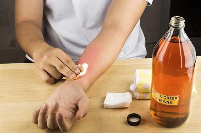 o-vinagre-consegue-tratar-doencas-que-afligem-a-pele-como-micose-e-frieira Conheça quais os usos do vinagre