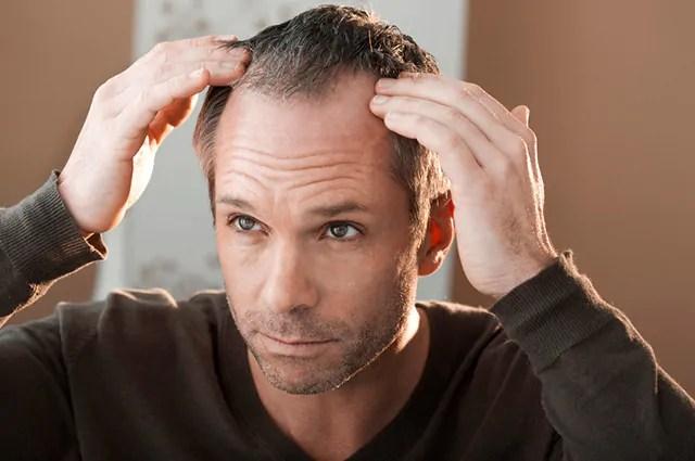 A vitamina C nutre fios de cabelo a ponto de aumentar a qualidade e resistência