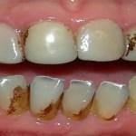 Porque tenho os dentes pretos? – O que pode ser e como tratar