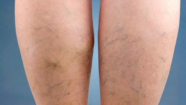 Que são de causas nas veias as o pernas visíveis