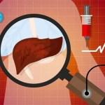 Gordura no fígado