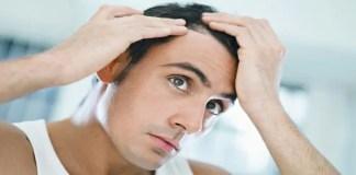 10 dicas para evitar a queda de cabelo masculino