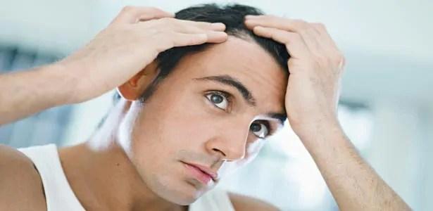 10-dicas-para-evitar-a-queda-de-cabelo-masculino Queda de cabelo | Confira as principais causas da calvície