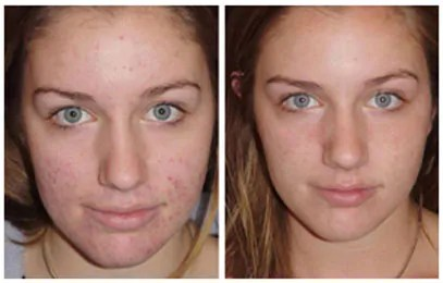 Pomada para acne: antes e depois