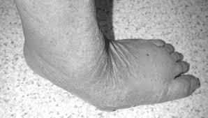 Navicular Drop