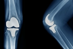 knee or hip replacement