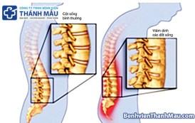 Viêm cột sống dính khớp là gì ?  Chuyên khoa cơ xương khớp – Bệnh Viện Thánh Mẫu vi  m c   t s   ng d  nh kh   p l   g